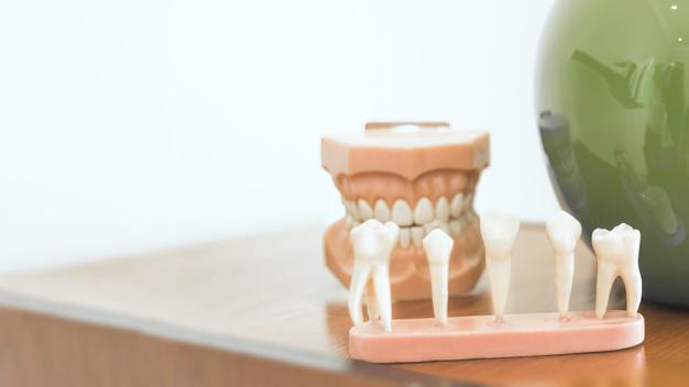 Impianti dentali Abbazia