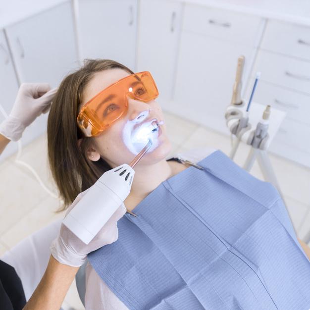 Lasersko izbjeljivanje zubi Opatija